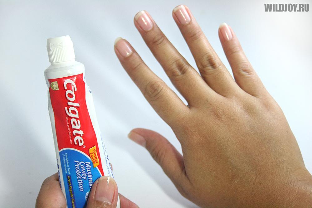 Как уменьшить зуд от укуса насекомых подручными средствами